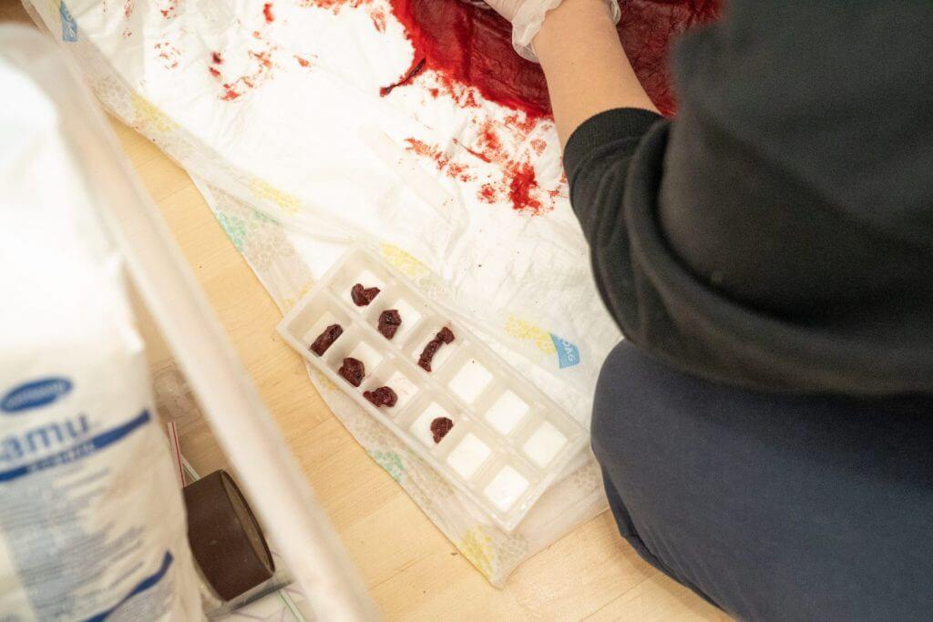 Plazentastückchen in Eiswürfelbehälter